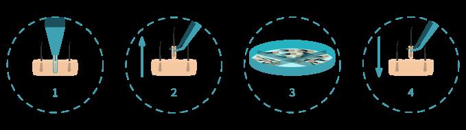 proceso-capilar-valenzuela
