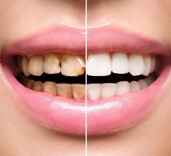 odontologia-restauradora